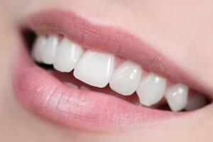 DtGV: Die besten Zahnzusatzversicherungen im Test
